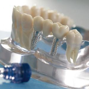 Implantologie und Chirurgie